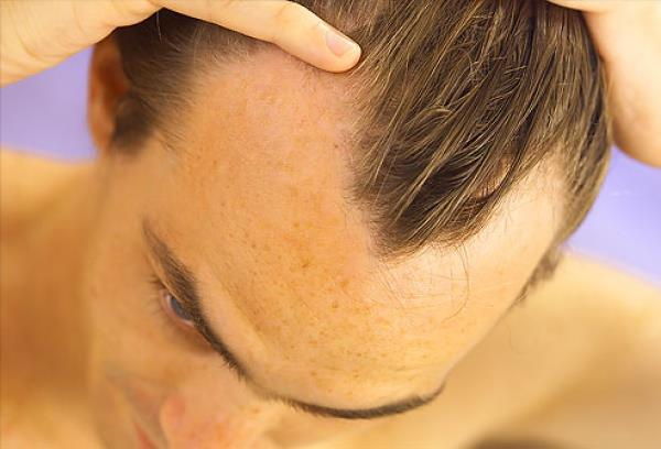 Hairstylist Adelin Sandu ne vorbește despre căderea părului